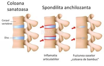 artrita reumatoidă a articulației sacrale