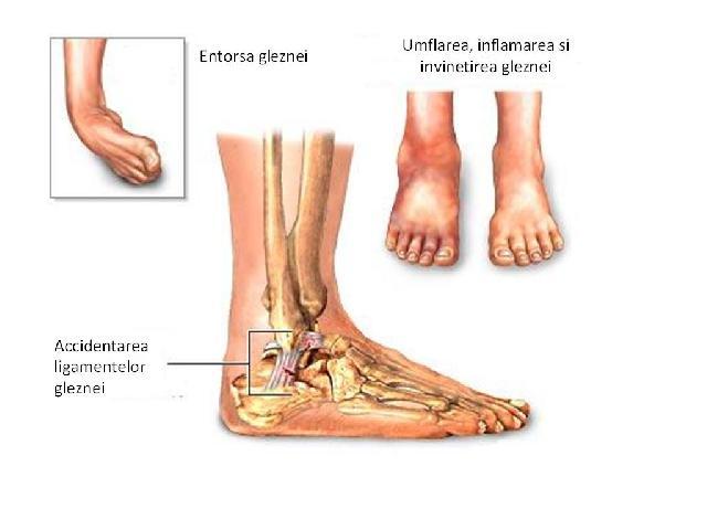 umflarea articulației glezna-picior dureri de brâu