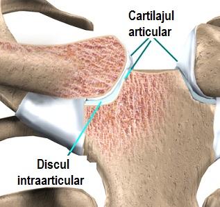 articulațiile scapulare doare