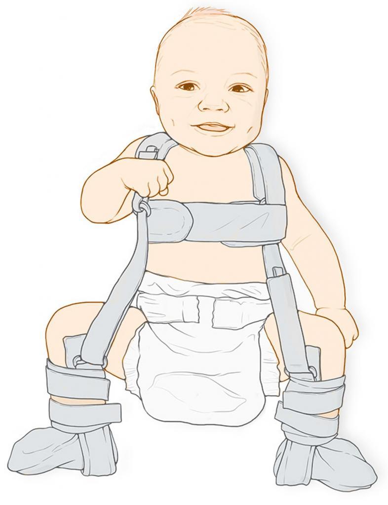 articulația șoldului nu tratează nuclee de osificare)