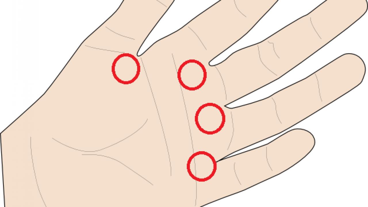 degetul articular doare degetul arătător