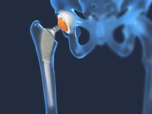 ambulanță pentru artroza articulației șoldului)