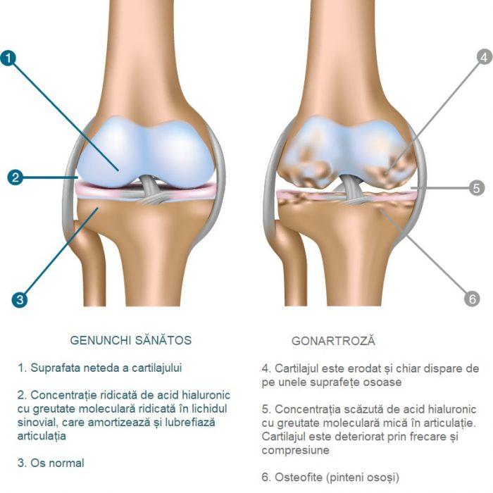 Instrucțiuni de injectare pentru utilizarea în artroza articulației genunchiului