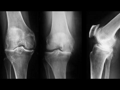 artrita genunchiului de grad