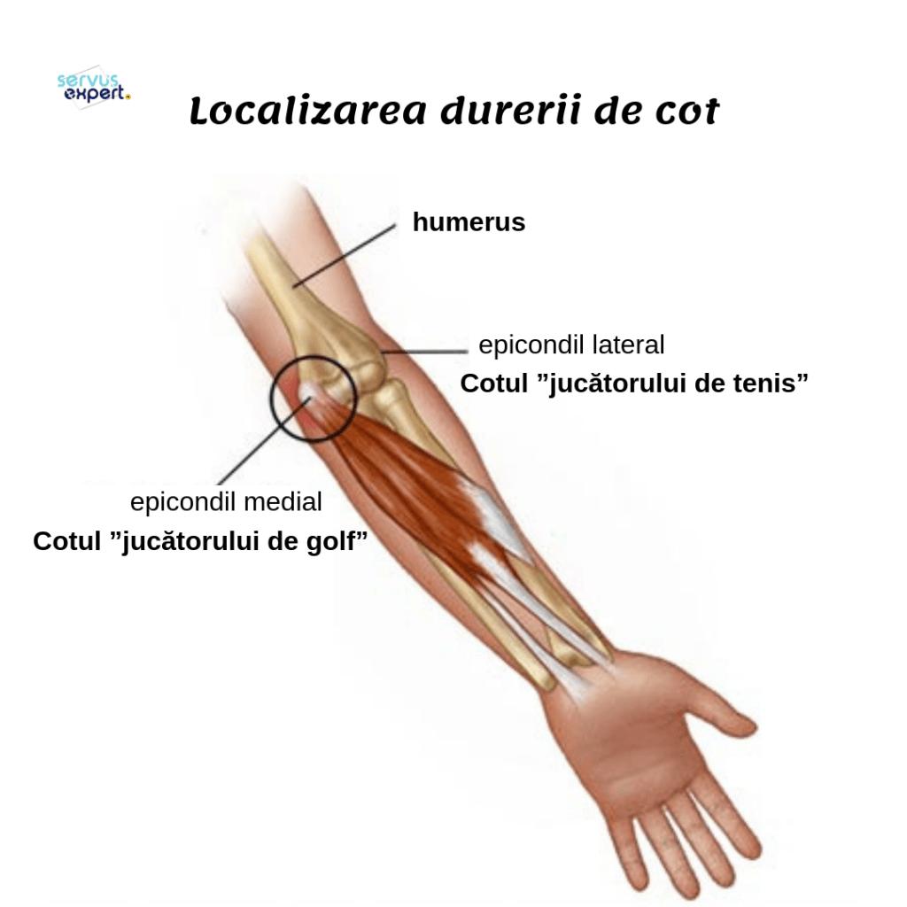 durere ascuțită în articulația cotului când este îndoită)