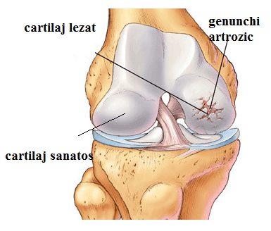 blocarea genunchiului în artroză ce este