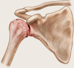 boala articulației umărului exostoză