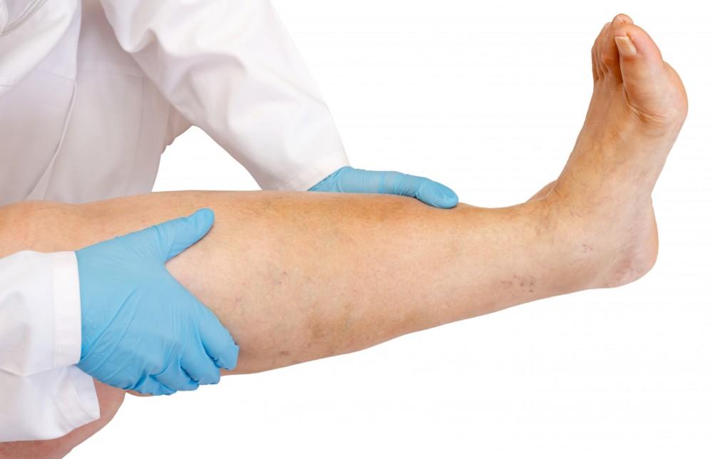 boala articulațiilor mari ale extremităților inferioare tratamentul artrozei teraflexului articulației genunchiului