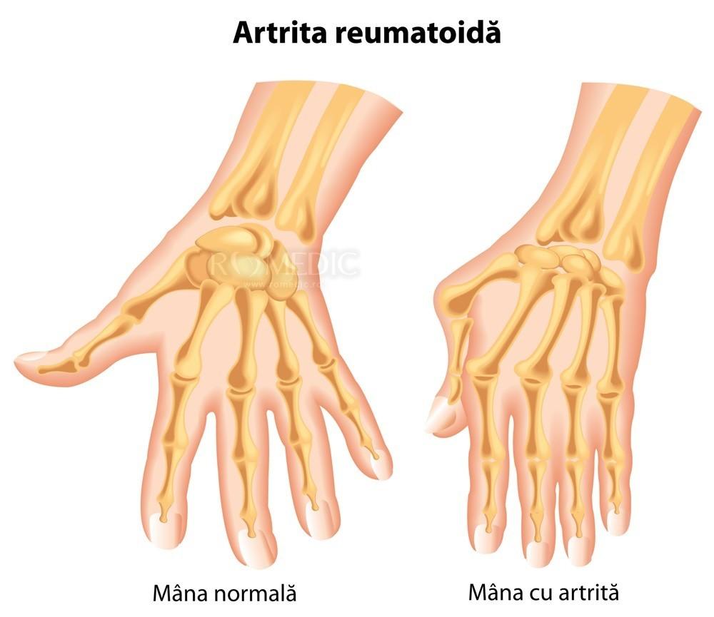 Boala latină a oaselor și articulațiilor