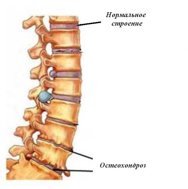 boli de coborâre ale coloanei vertebrale și articulațiilor