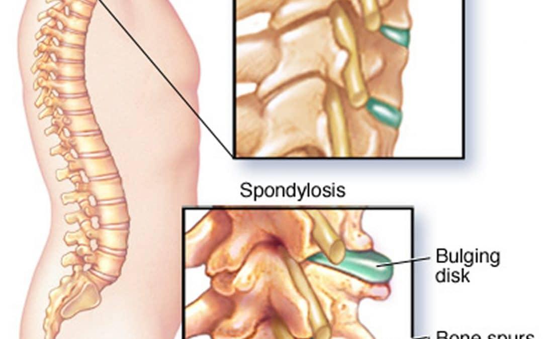 Totul despre spondiloza: cauze, simptome, tratament   CENTROKINETIC