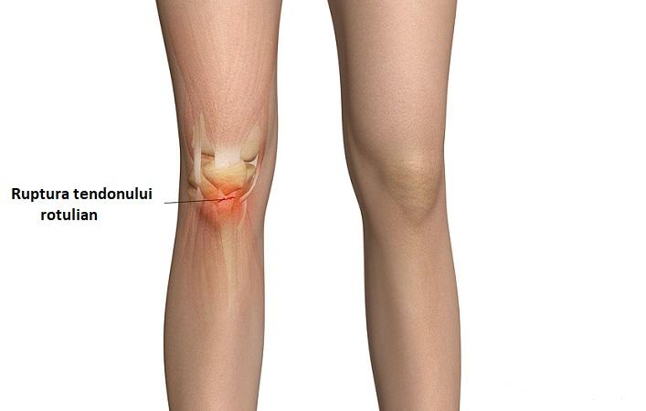 hematom în tratamentul articulației genunchiului
