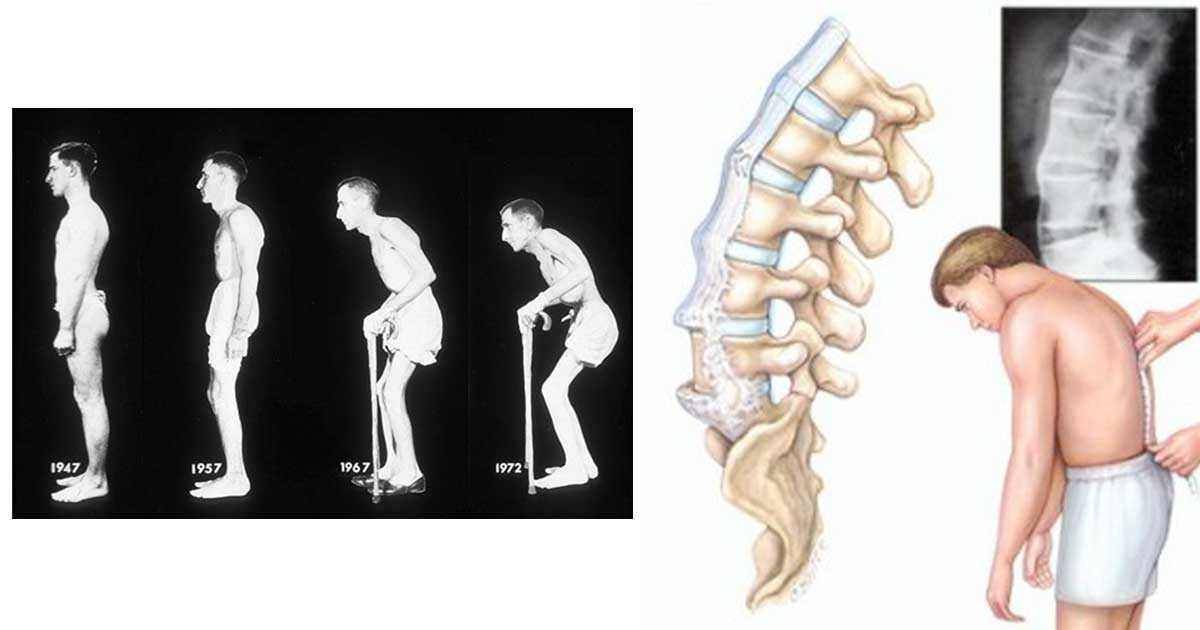 tratamentul artrozei metacarpofalangiene