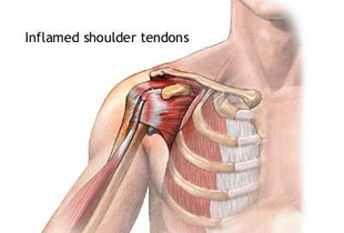 simptome și tratament dureri de umăr durere intermitentă la genunchi