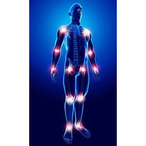 dureri articulare ca simptom