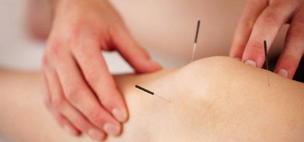 tratamentul prin acupunctură al artrozei)