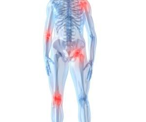boli inflamatorii degenerative ale articulațiilor