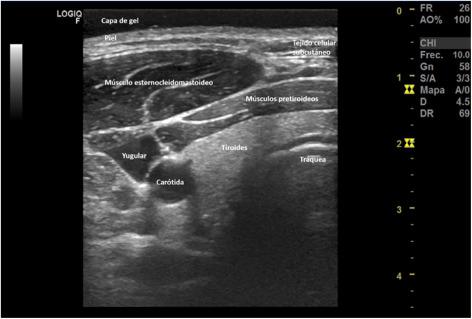 antecedente medicale de poliosteoartroză articulară)