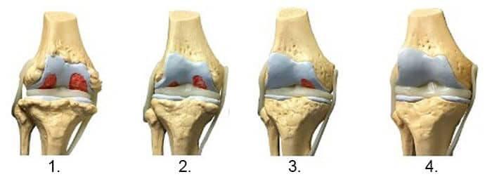 prescripție de unguent pentru dureri articulare articulațiile și mușchii brațului doare ce să facă