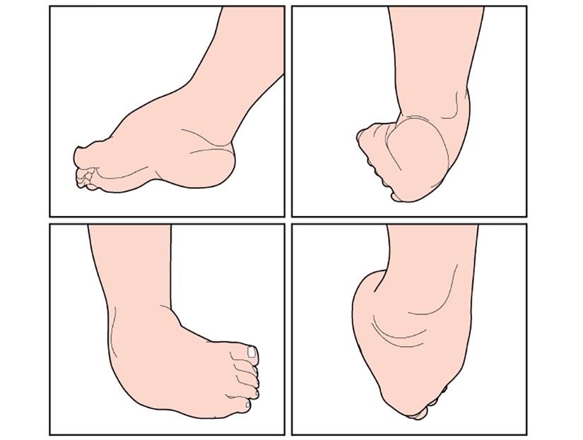 ce să faci cu boala articulațiilor picioarelor)