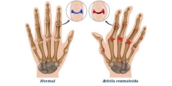 consecințele artritei mâinilor