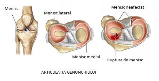 consecințele unei traume la meniscul genunchiului)