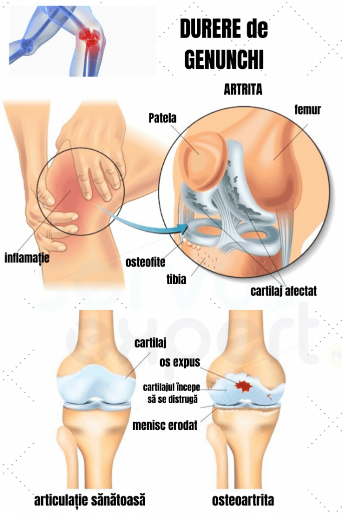 crize severe și dureri ale genunchiului