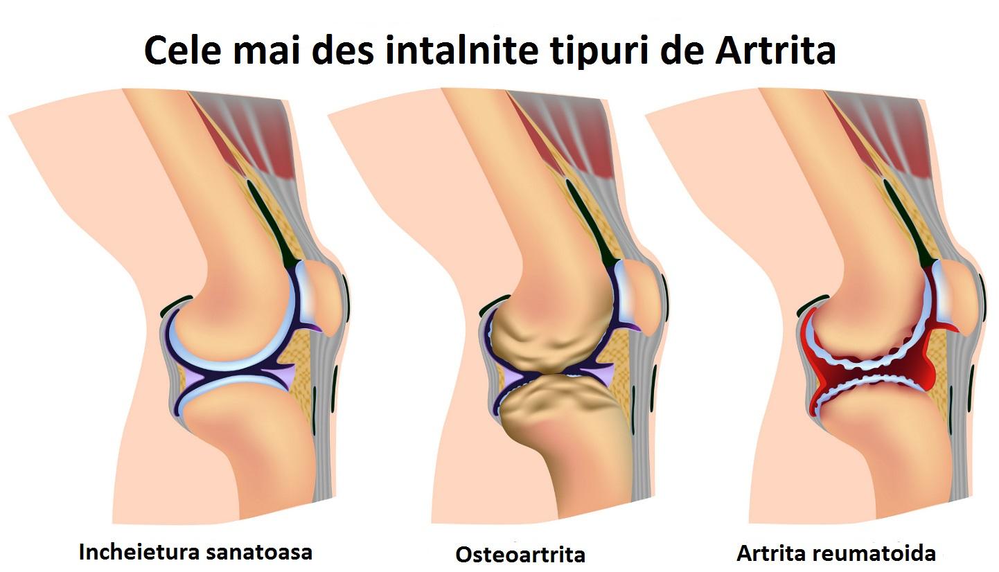 Cum am tratat artrita piciorului. Formular de căutare