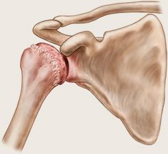 cum să frotiu artroza articulației umărului
