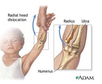 căzut pe o mână doare o articulație