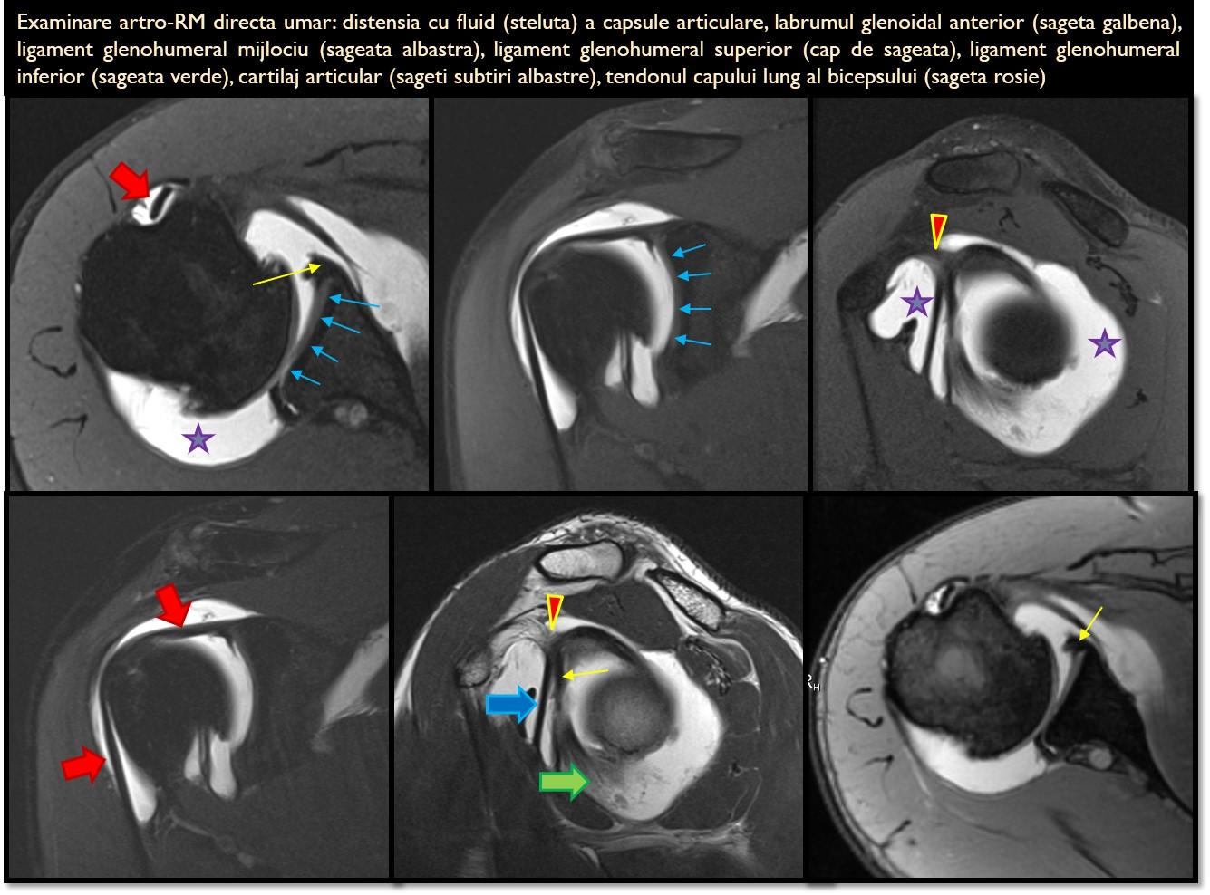 pregătirea articulației artro)