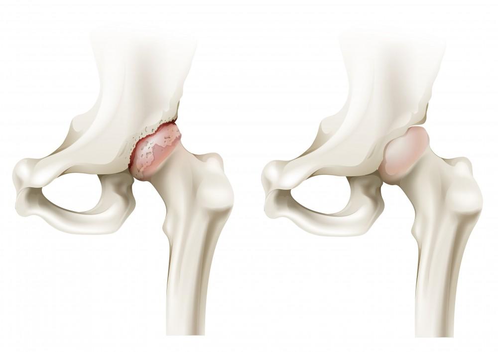 coxartroza articulației șoldului tratamentul gradului I al condondrotectoarelor