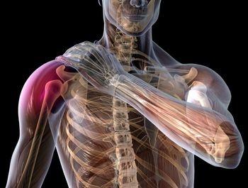 durere după fractura articulației umărului