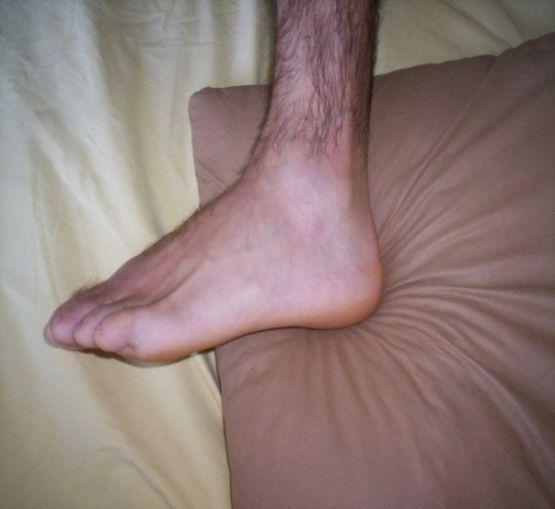 Am artrita gleznei)