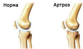tratament inițial al artrozei genunchiului