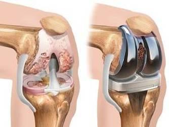 durere sub genunchi după înlocuirea articulației