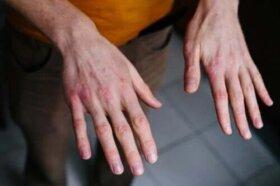 de ce rosturile mâinilor se rănesc pe vreme)