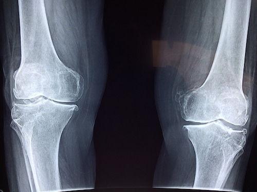 dezvoltarea articulațiilor genunchiului)