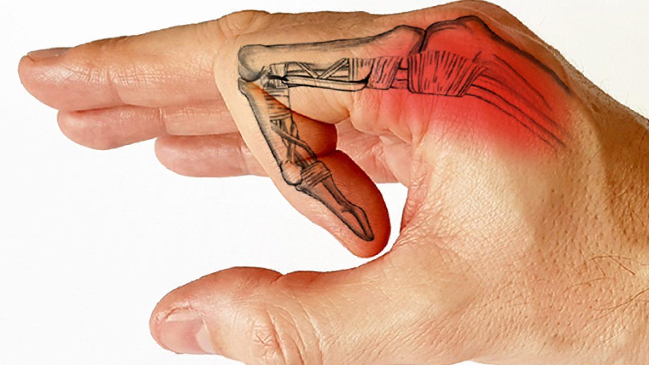 dureri articulare și osoase în oncologie tratamentul epicondilitei la genunchi