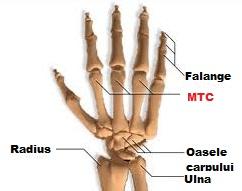 dislocarea durerii falangei articulare)