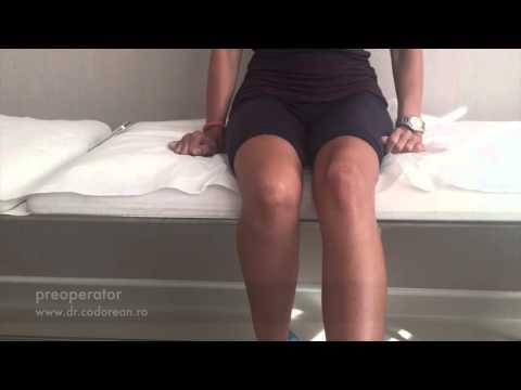 displazie patelofemorală genunchiului)