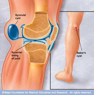 tratamentul medicamentos pentru artrita de sold medicamente pentru tratamentul articular pentru artroză