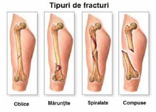 durere cu sarcomul genunchiului)