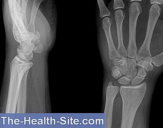 durere după fractura încheieturii