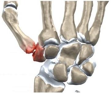 durere după o injecție în articulația degetului)