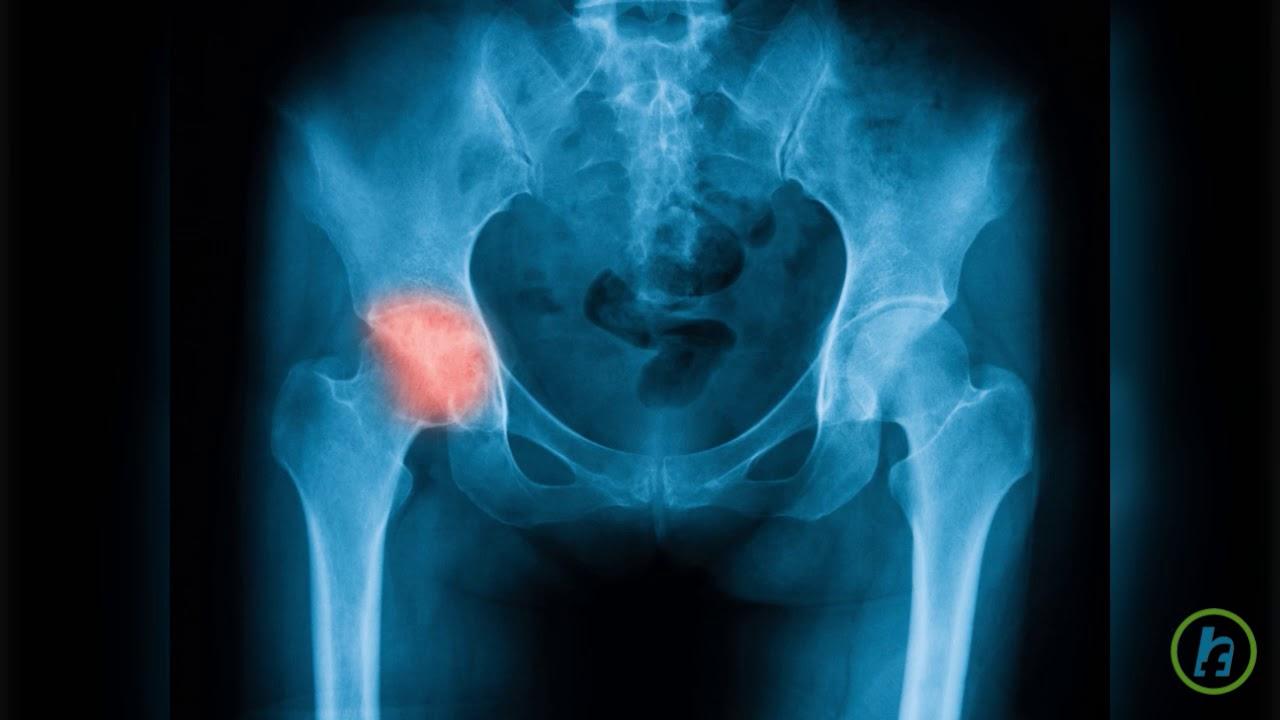 durere și umflare în articulația șoldului