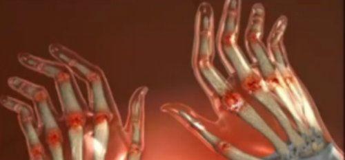durere și umflare în articulațiile mâinilor