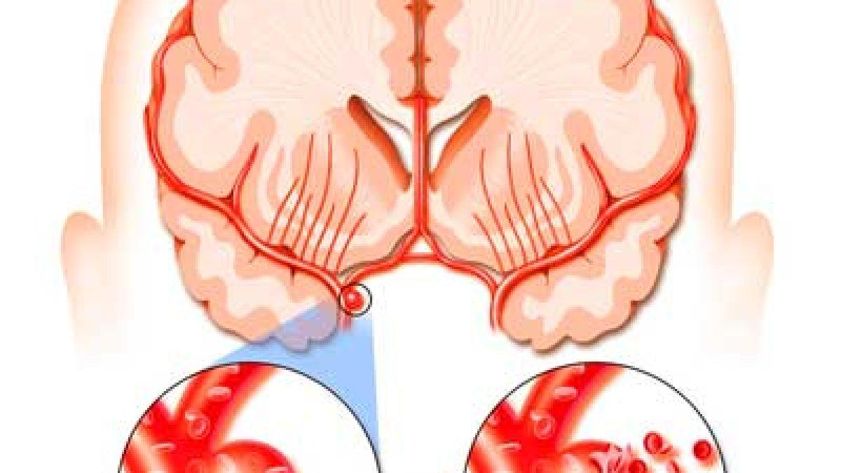 durere la gleznă după un accident vascular cerebral