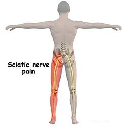 durere în sciatică. articulațiile