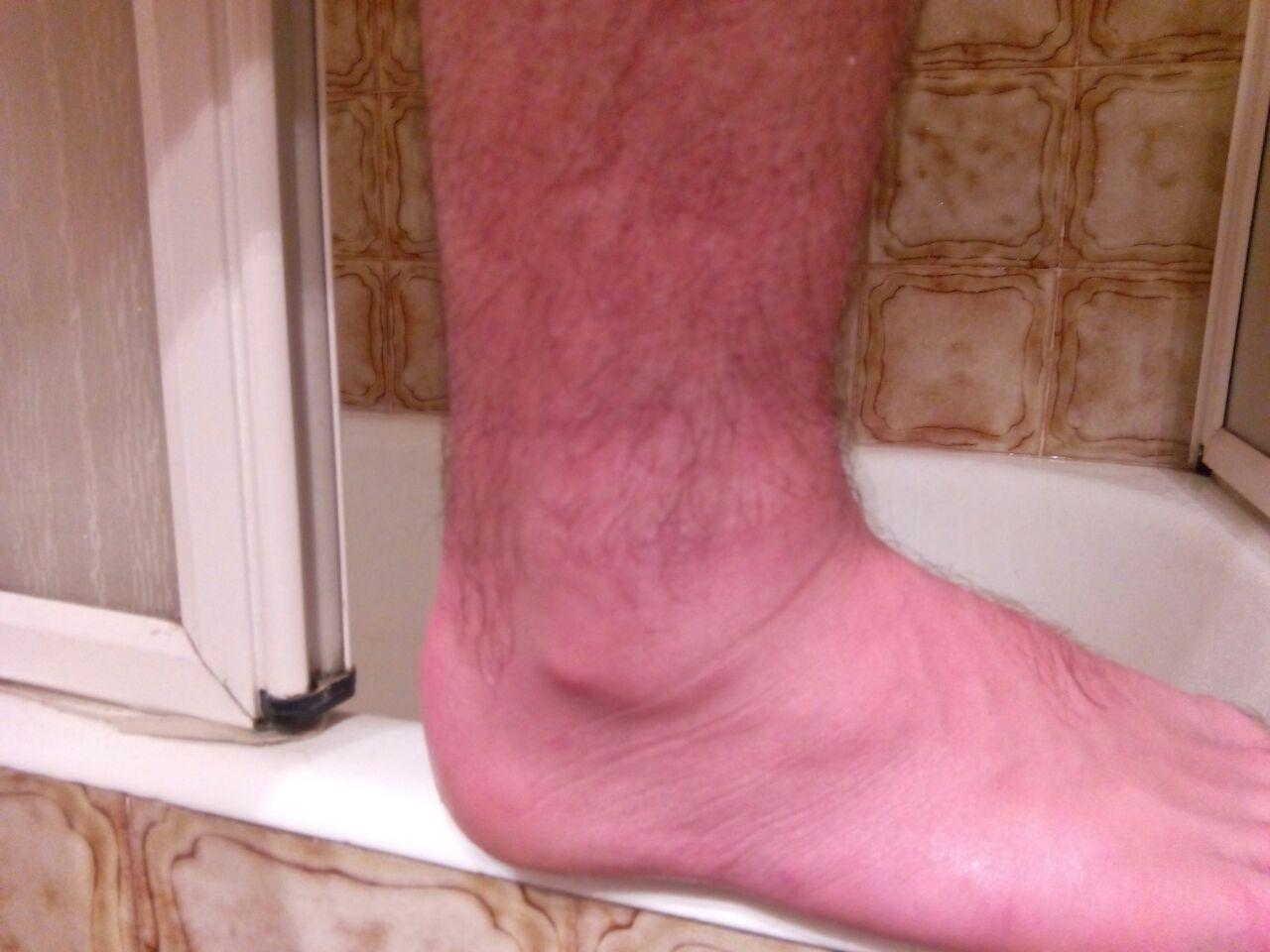 durerea articulară la picioarele mele s-a așezat